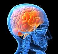 Výskyt Alzheimerovej choroby rastie geometrickým radom